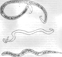 Figure 2. Filaria bancrofti embryo in its sheath, empty sheath, Filaria bancrofti embryo after escaping from its sheath