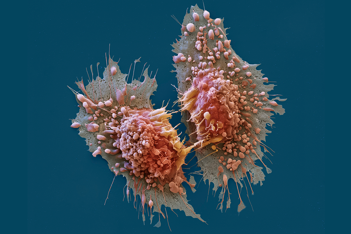 cancer ari info