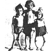 Figure 2. Children of 6 years of age with severe rachitic deformities compared with a normally grown child of the same age. Vienna 1920.