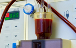 Dialysis developed for kidney failure