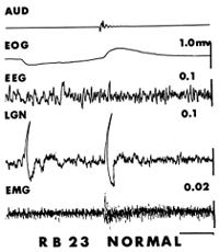 Figure 3. Polygraphic traces of records made in a normal cat during non-REM. The tracing, resulting from electrical activity in the lateral geniculate body (LGN) exhibits both a spontaneous and a sound incuced (90 dB, 500 Hz, 100 msec pure tone burst) PGO wave. A slight body twitch, or startle, occured following the sound as seen in the EMG record. A very subtle non-EEG change also occurred but then the cat continued in non-REM. Time calibration = 1 second. Reproduced with permission from Acta Neurobiologiae Experimentalis from Morrison and Bowker (1975).