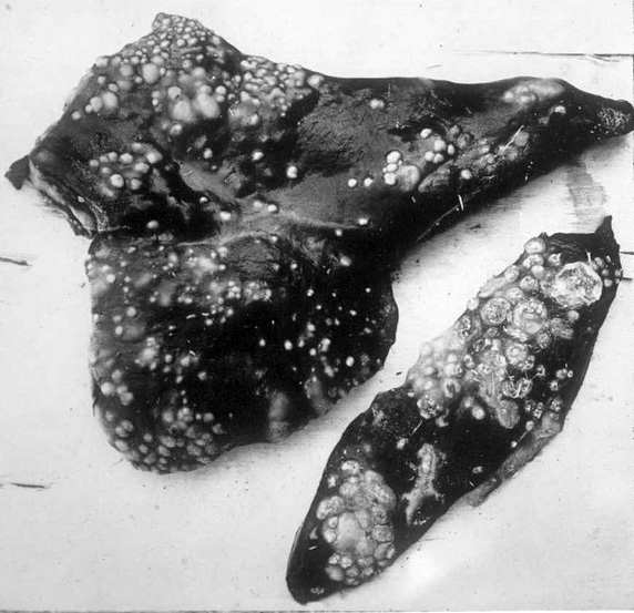 tuberculosis in liver