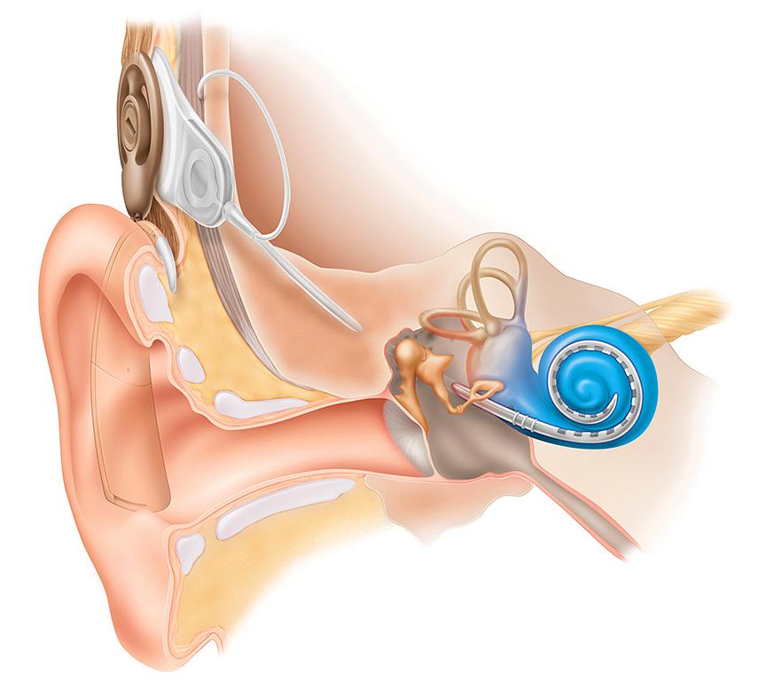 Deafnesshearing Loss