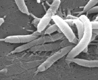 Scanning electron micrograph depicts a grouping of Helicobacter