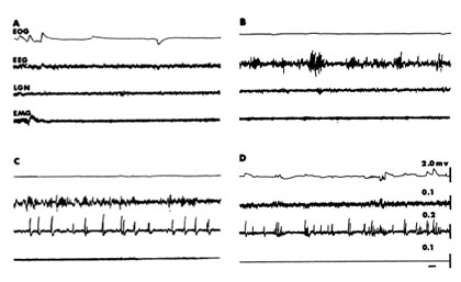 Figure 1. Polygraphic characteristics of behavioural states of (A) wakefulness; (B) non-REM; (C) transition from non-REM to REM; (D) REM. EOG eye movements recorded on the elecrocrdiogram; EEG, electoencephlogram; LGN, recording of PGO waves in the lateral geniculate body in C and D; EMG, elecromyographic activity of the dorsal cervical muscles which disappears at the end of C and in D, indicating the onset of atonia (paralysis) as the cat enters REM. Time calibration = 1 second. Reprinted from Morrison, A.R. (1979) Brainstem regulation of behaviour during sleep and wakefulness. In J.M. Sprague and A.N. Epstein (Eds.) progress in Psychology and Physiological Psychology, vol 8. New York: Academic Press, with permission from Academic Press.