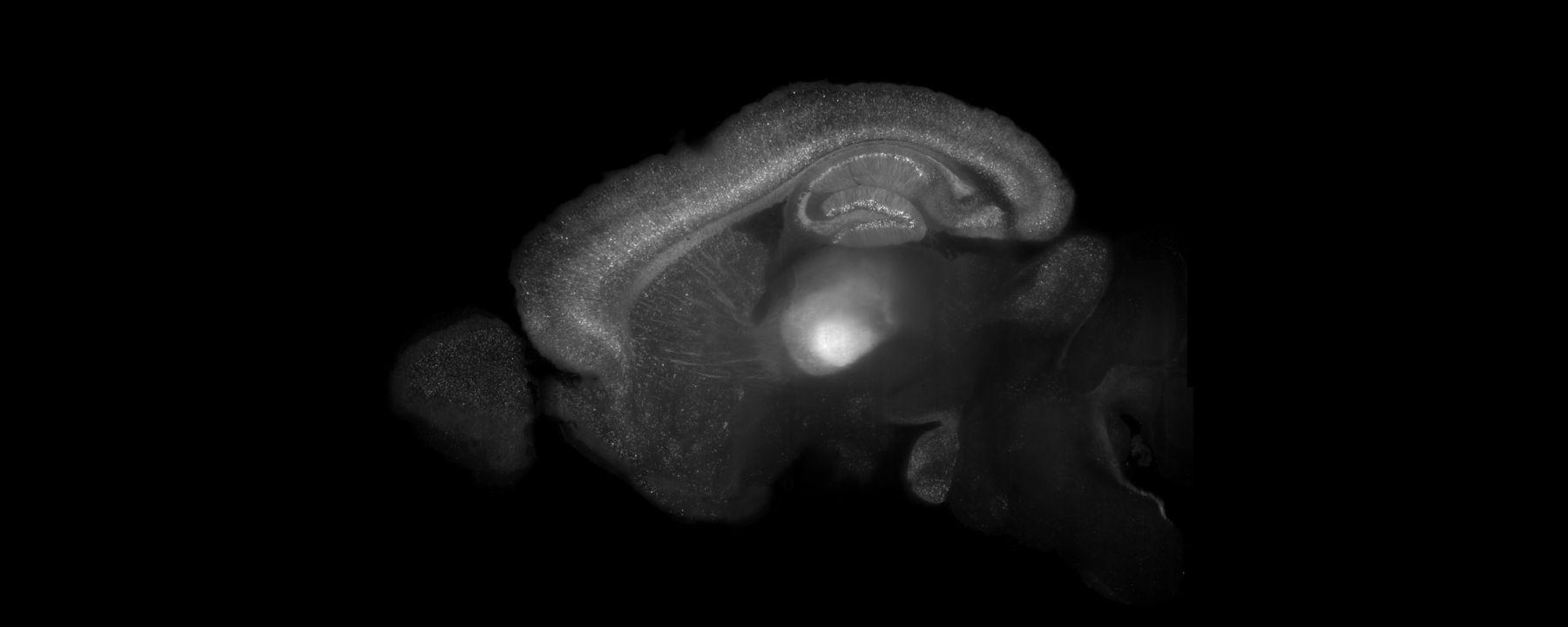 Overlooked Brain Cells May Have Leading >> The Brain Ari Info Ari Info